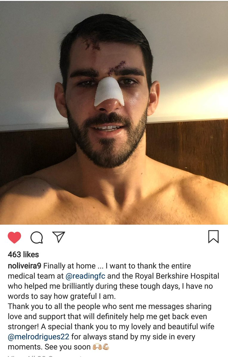 Royals striker posts update after surgery following gruesome facial injuury
